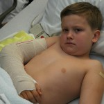Child with a broken bone