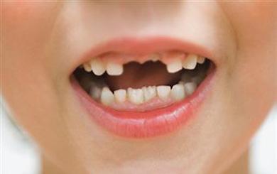 Losing Adult Teeth 13