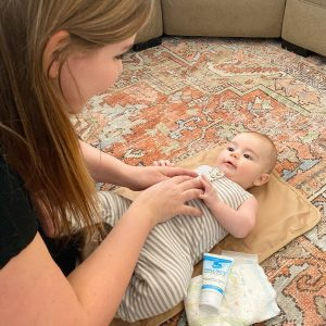 How to Deal with Diaper Rashes that Come with 6-Month Milestones